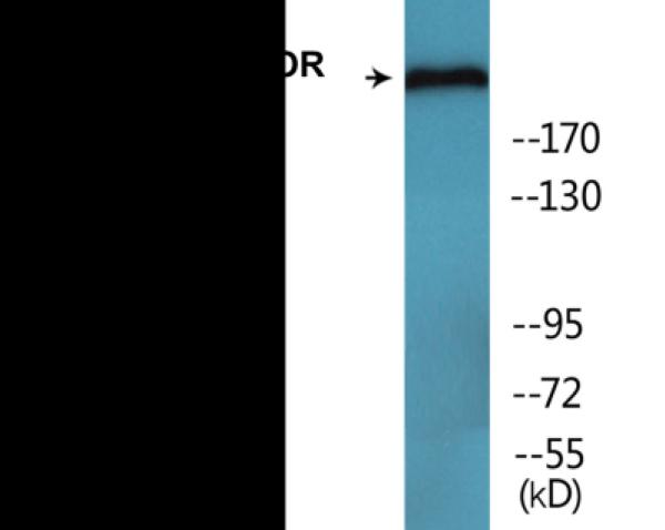 Western blot analysis of extracts from HeLa cells treated with EGF 200ng/ml 30'