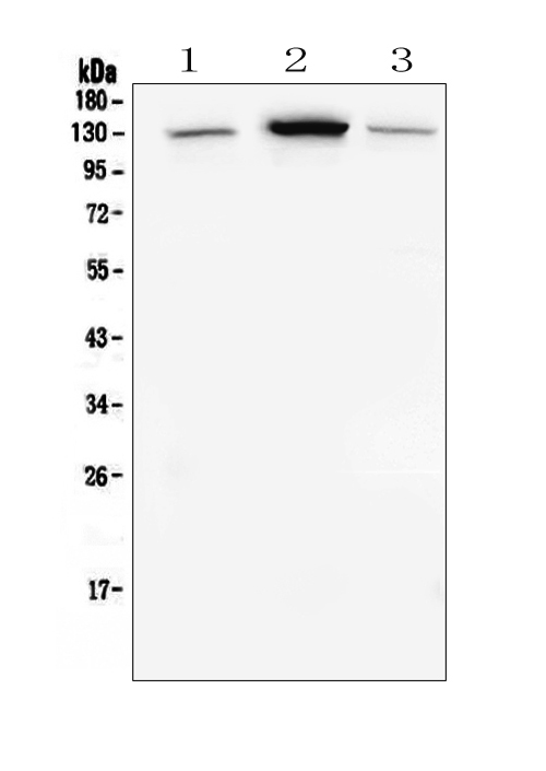 Figure 4. Western blot analysis of E Cadherin using anti-E Cadherin antibody (M00063-2). <br> Electrophoresis was performed on a 5-20% SDS-PAGE gel at 70V (Stacking gel) / 90V (Resolving gel) for 2-3 hours. The sample well of each lane was loaded with 50ug of sample under reducing conditions. <br> Lane 1: human placenta tissue lysates, <br> Lane 2: human A549 whole cell lysates, <br> Lane 3: human HEK293 whole cell lysates, <br> After Electrophoresis, proteins were transferred to a Nitrocellulose membrane at 150mA for 50-90 minutes. Blocked the membrane with 5% Non-fat Milk/ TBS for 1.5 hour at RT. The membrane was incubated with mouse anti-E Cadherin antigen affinity purified polyclonal antibody (Catalog # M00063-2) at 0.5 μg/mL overnight at 4°C, then washed with TBS-0.1%Tween 3 times with 5 minutes each and probed with a goat anti-mouse IgG-HRP secondary antibody at a dilution of 1:10000 for 1.5 hour at RT. The signal is developed using an Enhanced Chemiluminescent detection (ECL) kit (Catalog # EK1001) with Tanon 5200 system. A specific band was detected for E Cadherin at approximately 130KD. The expected band size for E Cadherin is at 97KD.
