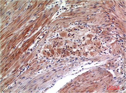 <h4>Figure 1. Immunohistochemistry validation of MAPK3 using Anti-Phospho-ERK 1/2 (Y222/205) MAPK3 Monoclonal Antibody (M00104Y222).</h4> Immunohistochemistry (IHC) analysis of paraffin-embedded Human Colon Carcinoma Tissue using Phospho-ERK1/2 Y222/205 Mouse Monoclonal Antibody diluted at 1:200.<br> For more protocol information of IHC