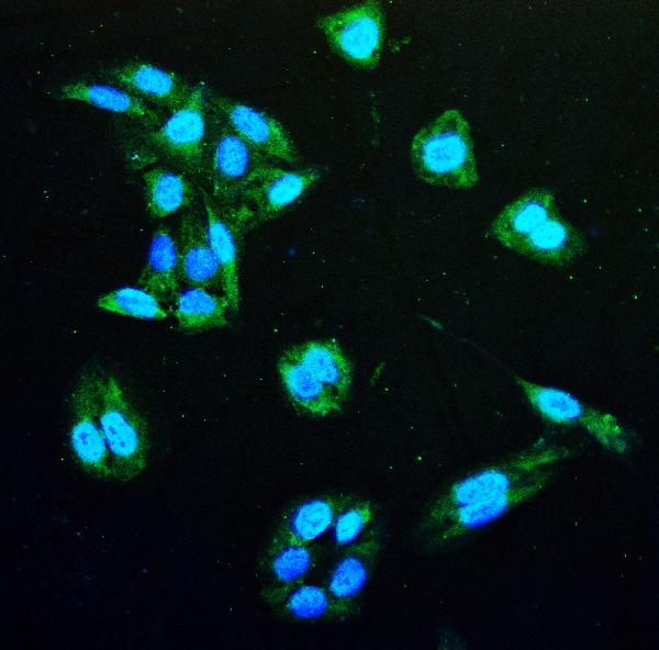 Figure 3. IF analysis of IDH1 using anti- IDH1 antibody (M00129-1). <br>