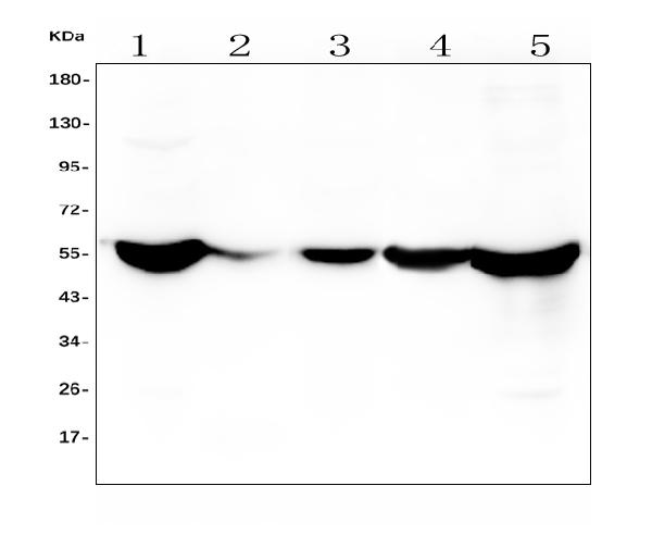 Figure 1. Western blot analysis of ALDH2 using anti- ALDH2 antibody (M00546-1). <br> Electrophoresis was performed on a 5-20% SDS-PAGE gel at 70V (Stacking gel) / 90V (Resolving gel) for 2-3 hours. The sample well of each lane was loaded with 50ug of sample under reducing conditions. <br> Lane 1: human HepG2 tissue lysates, <br> Lane 2: human placenta whole cell lysates, <br> Lane 3: human HEK293 whole cell lysates, <br> Lane 4: human SHG-44 whole cell lysates, <br> Lane 5: human THP-1 whole cell lysates, <br> After Electrophoresis, proteins were transferred to a Nitrocellulose membrane at 150mA for 50-90 minutes. Blocked the membrane with 5% Non-fat Milk/ TBS for 1.5 hour at RT. The membrane was incubated with mouse anti- ALDH2 antigen affinity purified polyclonal antibody (Catalog # M00546-1) at 0.5 μg/mL overnight at 4°C, then washed with TBS-0.1%Tween 3 times with 5 minutes each and probed with a goat anti-mouse IgG-HRP secondary antibody at a dilution of 1:10000 for 1.5 hour at RT. The signal is developed using an Enhanced Chemiluminescent detection (ECL) kit (Catalog # EK1001) with Tanon 5200 system. A specific band was detected for ALDH2 at approximately 56KD. The expected band size for ALDH2 is at 56KD.