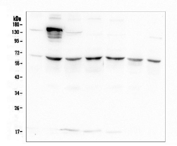 Figure 1. Western blot analysis of AKT2 using anti-AKT2 antibody (M00725-1). <br> Electrophoresis was performed on a 5-20% SDS-PAGE gel at 70V (Stacking gel) / 90V (Resolving gel) for 2-3 hours. The sample well of each lane was loaded with 50ug of sample under reducing conditions. <br> Lane 1: human A549 whole cell lysate,<br> Lane 2: human 293T whole cell lysate,<br> Lane 3: human HELA whole cell lysate,<br> Lane 4: human Caco-2 whole cell lysate,<br> Lane 5: human K562 whole cell lysate,<br> Lane 6: human HL-60 whole cell lysate,<br> Lane 7: human PC-3 whole cell lysate. <br> After Electrophoresis, proteins were transferred to a Nitrocellulose membrane at 150mA for 50-90 minutes. Blocked the membrane with 5% Non-fat Milk/ TBS for 1.5 hour at RT. The membrane was incubated with mouse anti-AKT2 antigen affinity purified monoclonal antibody (Catalog # M00725-1) at 0.5 μg/mL overnight at 4°C, then washed with TBS-0.1%Tween 3 times with 5 minutes each and probed with a goat anti-mouse IgG-HRP secondary antibody at a dilution of 1:10000 for 1.5 hour at RT. The signal is developed using an Enhanced Chemiluminescent detection (ECL) kit (Catalog # EK1001) with Tanon 5200 system.