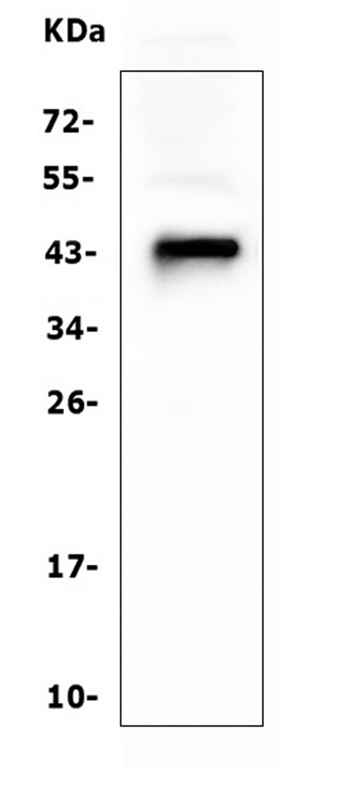 Figure 1. Western blot analysis of CD79A using anti ZO-1 antibody (M01047-3). <br> Electrophoresis was performed on a 5-20% SDS-PAGE gel at 70V (Stacking gel) / 90V (Resolving gel) for 2-3 hours. The sample well of each lane was loaded with 50ug of sample under reducing conditions. <br> Lane 1: human Raji tissue lysates, <br> After Electrophoresis, proteins were transferred to a Nitrocellulose membrane at 150mA for 50-90 minutes. Blocked the membrane with 5% Non-fat Milk/ TBS for 1.5 hour at RT. The membrane was incubated with mouse anti-CD79A antigen affinity purified polyclonal antibody (Catalog # M01047-3) at 0.5 μg/mL overnight at 4°C, then washed with TBS-0.1%Tween 3 times with 5 minutes each and probed with a goat anti-mouse IgG-HRP secondary antibody at a dilution of 1:10000 for 1.5 hour at RT. The signal is developed using an Enhanced Chemiluminescent detection (ECL) kit (Catalog # EK1001) with Tanon 5200 system. A specific band was detected for CD79A at approximately 44KD. The expected band size for CD79A is at 25KD.