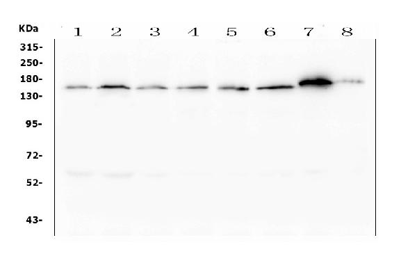 Figure 1. Western blot analysis of ASXL1 using anti- ASXL1 antibody (M01099). <br>