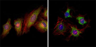 Ephrin type-B receptor 2 EphB2 Monoclonal Antibody