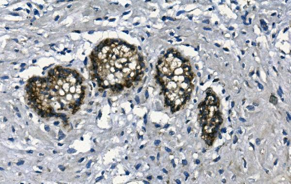Figure 3. IHC analysis of GAA using anti- GAA antibody (M01548). <br>