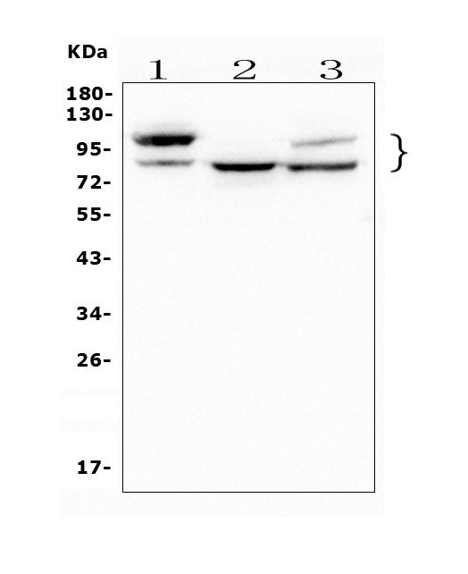 Figure 1. Western blot analysis of GAA using anti- GAAantibody (M01548). <br>