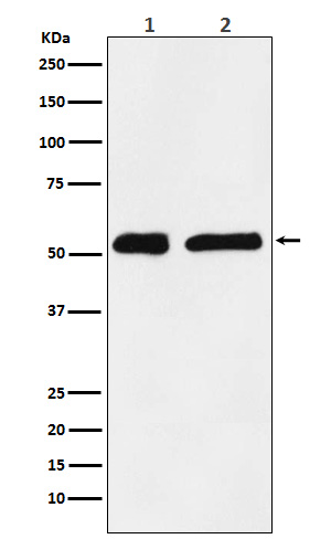 Figure 1. Western blot analysis of KPNA2 using anti-KPNA2 antibody (M01776).<br>Electrophoresis was performed on a 5-20% SDS-PAGE gel at 70V (Stacking gel) / 90V (Resolving gel) for 2-3 hours. The sample well of each lane was loaded with 50ug of sample under reducing conditions. <br>After Electrophoresis, proteins were transferred to a Nitrocellulose membrane at 150mA for 50-90 minutes. Blocked the membrane with 5% Non-fat Milk/ TBS for 1.5 hour at RT. The membrane was incubated with rabbit anti-KPNA2 antigen affinity purified polyclonal antibody (Catalog # M01776) at 0.5 ug/mL overnight at 4°C, then washed with TBS-0.1%Tween 3 times with 5 minutes each and probed with a goat anti-Rabbit IgG IgG-HRP secondary antibody at a dilution of 1:10000 for 1.5 hour at RT. The signal is developed using an Enhanced Chemiluminescent detection (ECL) kit (Catalog # SA1022) with Tanon 5200 system. A specific band was detected for KPNA2.