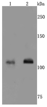 <h4>Figure 1. Western blotting validation for Anti-NMDAR1 GRIN1 Rabbit Monoclonal Antibody M01808-1</h4>  <br>   Line 1: MCF-7 <br>   Line 2: A549<br> Electrophoresis was performed on a SDS-PAGE gel. To determine SDS-PAGE gel concentration