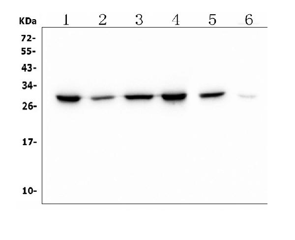 Figure 1. Western blot analysis of PRDX6 using anti- PRDX6 antibody (M01847-1). <br>