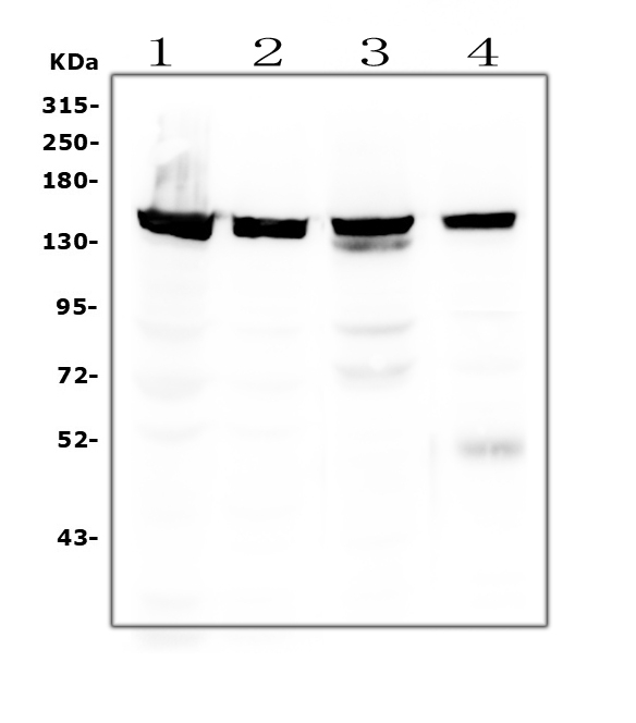 Figure 4. Western blot analysis of SMC3 using anti-SMC3 antibody (M01930-1). <br>  Electrophoresis was performed on a 5-20% SDS-PAGE gel at 70V (Stacking gel) / 90V (Resolving gel) for 2-3 hours. The sample well of each lane was loaded with 50ug of sample under reducing conditions.  <br> Lane 1: human HEK293 whole cell lysates<br> Lane 2: human Hela whole cell lysates<br> Lane 3: rat thymus tissue lysates<br> Lane 4: mouse thymus tissue lysates<br>   After Electrophoresis, proteins were transferred to a Nitrocellulose membrane at 150mA for 50-90 minutes. Blocked the membrane with 5% Non-fat Milk/ TBS for 1.5 hour at RT. The membrane was incubated with mouse anti-SMC3 antigen affinity purified monoclonal antibody (Catalog # M01930-1) at 0.5 μg/mL overnight at 4°C, then washed with TBS-0.1%Tween 3 times with 5 minutes each and probed with a goat anti-mouse IgG-HRP secondary antibody at a dilution of 1:10000 for 1.5 hour at RT. The signal is developed using an Enhanced Chemiluminescent detection (ECL) kit (Catalog # EK1001) with Tanon 5200 system. A specific band was detected for SMC3 at approximately 142KD. The expected band size for SMC3 is at 142KD.