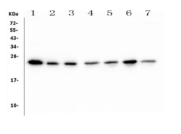 Figure 1. Western blot analysis of HMGB3 using anti- HMGB3 antibody (M02834-1). <br>
