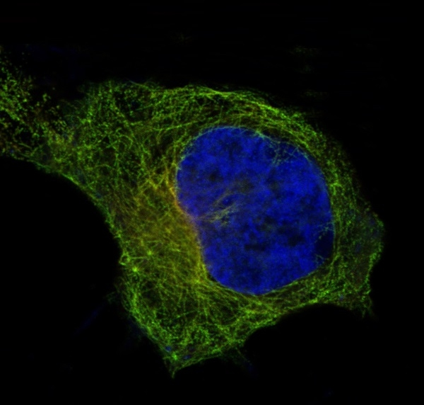 IF analysis of immunocytochemical section of Hela cells using anti- beta I Tubulin antibody (M05397) <br> beta I Tubulin was detected in immunocytochemical section. Enzyme antigen retrieval was performed using IHC enzyme antigen retrieval reagent (AR0022) for 15 mins. The tissue section was blocked with 10% goat serum. The tissue section was then incubated with 2μg/mL rabbit anti- beta I Tubulin Antibody (M05397) overnight at 4 °