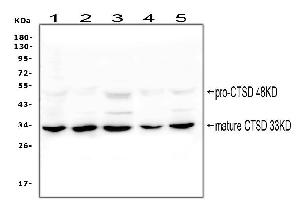 Figure 4. Western blot analysis of Cathepsin D using anti-Cathepsin D antibody (MA1013). <br> Electrophoresis was performed on a 5-20% SDS-PAGE gel at 70V (Stacking gel) / 90V (Resolving gel) for 2-3 hours. The sample well of each lane was loaded with 50ug of sample under reducing conditions. <br> Lane 1: human A549 whole cell lysate, <br> Lane 2: human placenta tissue lysate, <br> Lane 3: human PC-3 whole cell lysate, <br> Lane 4: human Hela whole cell lysate, <br> Lane 5: human Caco-2 whole cell lysate. <br> After Electrophoresis, proteins were transferred to a Nitrocellulose membrane at 150mA for 50-90 minutes. Blocked the membrane with 5% Non-fat Milk/ TBS for 1.5 hour at RT. The membrane was incubated with mouse anti-Cathepsin D antigen affinity purified monoclonal antibody (Catalog # MA1013) at 0.5 μg/mL overnight at 4°C, then washed with TBS-0.1%Tween 3 times with 5 minutes each and probed with a goat anti-mouse IgG-HRP secondary antibody at a dilution of 1:10000 for 1.5 hour at RT. The signal is developed using an Enhanced Chemiluminescent detection (ECL) kit (Catalog # EK1001) with Tanon 5200 system. Specific bands were detected for Cathepsin D at approximately 33 and 48KD. The expected band size for Cathepsin D is at 45KD.