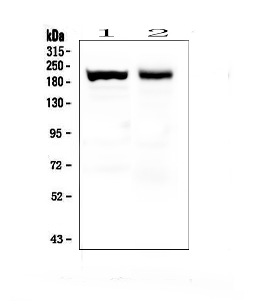 Figure 1. Western blot analysis of Myosin(Skeletal, Slow) using anti- Myosin(Skeletal, Slow) antibody (MA1064). <br> Electrophoresis was performed on a 5-20% SDS-PAGE gel at 70V (Stacking gel) / 90V (Resolving gel) for 2-3 hours. The sample well of each lane was loaded with 50ug of sample under reducing conditions.  <br> Lane 1: mouse skeletal muscle tissue lysates,  <br> Lane 2: rat skeletal muscle tissue lysates. <br> After Electrophoresis, proteins were transferred to a Nitrocellulose membrane at 150mA for 50-90 minutes. Blocked the membrane with 5% Non-fat Milk/ TBS for 1.5 hour at RT. The membrane was incubated with mouse anti- Myosin(Skeletal, Slow) antigen affinity purified monoclonal antibody (Catalog # MA1064) at 0.5 μg/mL overnight at 4°C, then washed with TBS-0.1%Tween 3 times with 5 minutes each and probed with a goat anti-mouse IgG-HRP secondary antibody at a dilution of 1:10000 for 1.5 hour at RT. The signal is developed using an Enhanced Chemiluminescent detection (ECL) kit (Catalog # EK1001) with Tanon 5200 system. A specific band was detected for Myosin(Skeletal, Slow) at approximately 200-220KD. The expected band size for Myosin(Skeletal, Slow) is at 220KD.
