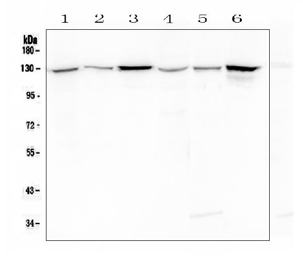 Figure 1. Western blot analysis of Cadherin-2/N-Cadherin using anti- Cadherin-2/N-Cadherin antibody (MA1067). <br> Electrophoresis was performed on a 5-20% SDS-PAGE gel at 70V (Stacking gel) / 90V (Resolving gel) for 2-3 hours. The sample well of each lane was loaded with 50ug of sample under reducing conditions. <br> Lane 1: human Hela whole cell lysates,<br> Lane 2: human A431 whole cell lysates,<br> Lane 3: human MCF-7 whole cell lysates, <br> Lane 4: human PANC-1 whole cell lysates,<br> Lane 5: human A549 whole cell lysates,<br> Lane 6: mouse NIH3T3 whole cell lysates.<br> After Electrophoresis, proteins were transferred to a Nitrocellulose membrane at 150mA for 50-90 minutes. Blocked the membrane with 5% Non-fat Milk/ TBS for 1.5 hour at RT. The membrane was incubated with mouse anti- Cadherin-2/N-Cadherin antigen affinity purified monoclonal antibody (Catalog # MA1067) at 0.5 μg/mL overnight at 4°C, then washed with TBS-0.1%Tween 3 times with 5 minutes each and probed with a goat anti-mouse IgG-HRP secondary antibody at a dilution of 1:10000 for 1.5 hour at RT. The signal is developed using an Enhanced Chemiluminescent detection (ECL) kit (Catalog # EK1001) with Tanon 5200 system. A specific band was detected for Cadherin-2/N-Cadherin at approximately 130KD. The expected band size for Cadherin-2/N-Cadherin is at 100KD.