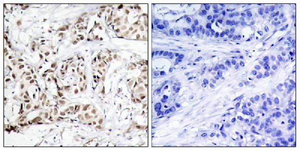 Immunohistochemical analysis of paraffin-embedded human breast carcinoma tissue using SAPK/JNK(Phospho-Thr183) antibody P02706(left) or the same antibody preincubated with blocking peptide(right).