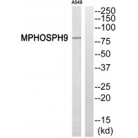 Western blot analysis of extracts from A549 cells, using MPHOSPH9 antibody P08340.