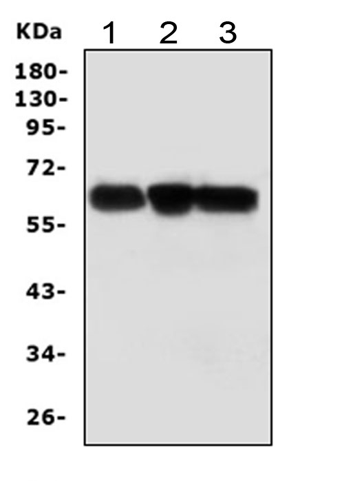 Figure 1. Western blot analysis of ABI-1 using anti- ABI-1 antibody (PA1001). <br> Electrophoresis was performed on a 5-20% SDS-PAGE gel at 70V (Stacking gel) / 90V (Resolving gel) for 2-3 hours. The sample well of each lane was loaded with 50ug of sample under reducing conditions. <br> Lane 1: rat brain tissue lysates, <br> Lane 2: mouse brain tissue lysates, <br> Lane 3: human THP-1 whole cell lysates, <br> After Electrophoresis, proteins were transferred to a Nitrocellulose membrane at 150mA for 50-90 minutes. Blocked the membrane with 5% Non-fat Milk/ TBS for 1.5 hour at RT. The membrane was incubated with rabbit anti- ABI-1 antigen affinity purified polyclonal antibody (Catalog # PA1001) at 0.5 μg/mL overnight at 4°C, then washed with TBS-0.1%Tween 3 times with 5 minutes each and probed with a goat anti-rabbit IgG-HRP secondary antibody at a dilution of 1:10000 for 1.5 hour at RT. The signal is developed using an Enhanced Chemiluminescent detection (ECL) kit (Catalog # EK1002) with Tanon 5200 system. A specific band was detected for ABI-1 at approximately 65KD. The expected band size for ABI-1 is at 55KD.
