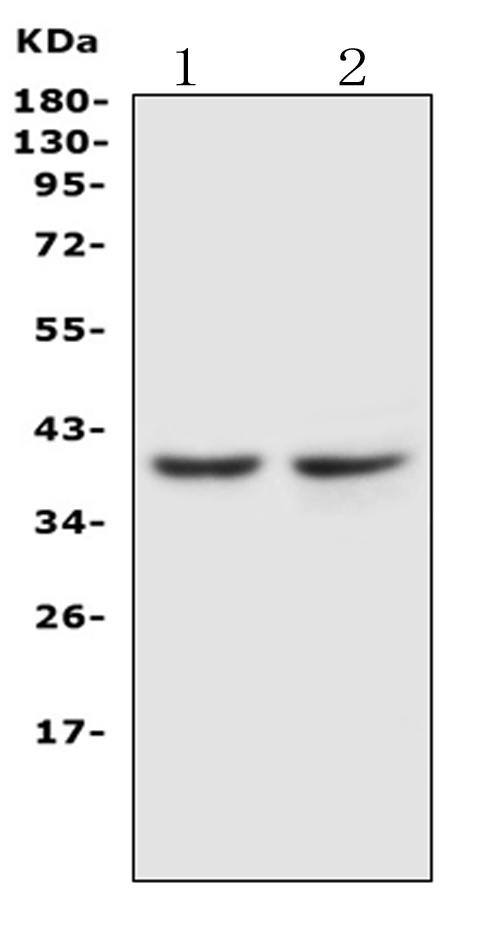 Anti-CCR5 antibody, PA1016, Western blotting<br>Lane 1: JURKAT Cell Lysate<br>Lane 2: COLO320 Cell Lysate<br>