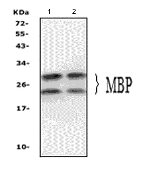 Figure 8. Western blot analysis of MBP using anti- MBP antibody (PA1050). <br> Electrophoresis was performed on a 5-20% SDS-PAGE gel at 70V (Stacking gel) / 90V (Resolving gel) for 2-3 hours. The sample well of each lane was loaded with 50ug of sample under reducing conditions. <br> Lane 1: mouse brain tissue lysates, <br> Lane 2: rat brain tissue lysates, <br> After Electrophoresis, proteins were transferred to a Nitrocellulose membrane at 150mA for 50-90 minutes. Blocked the membrane with 5% Non-fat Milk/ TBS for 1.5 hour at RT. The membrane was incubated with rabbit anti- MBP antigen affinity purified polyclonal antibody (Catalog # PA1050) at 0.5 μg/mL overnight at 4°C, then washed with TBS-0.1%Tween 3 times with 5 minutes each and probed with a goat anti-rabbit IgG-HRP secondary antibody at a dilution of 1:10000 for 1.5 hour at RT. The signal is developed using an Enhanced Chemiluminescent detection (ECL) kit (Catalog # EK1002) with Tanon 5200 system. A specific band was detected for MBP at approximately 17-33KD. The expected band size for MBP is at 17-33KD.
