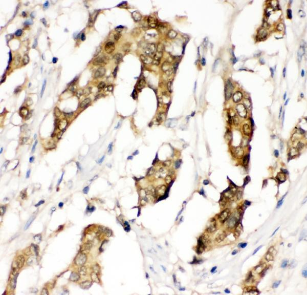 Figure 3. IHC analysis of MIF using anti-MIF antibody (PA1052). <br> MIF was detected in paraffin-embedded section of human mammary cancer tissue. Heat mediated antigen retrieval was performed in citrate buffer (pH6, epitope retrieval solution) for 20 mins. The tissue section was blocked with 10% goat serum. The tissue section was then incubated with 1μg/ml rabbit anti-MIF Antibody (PA1052) overnight at 4°C. Biotinylated goat anti-rabbit IgG was used as secondary antibody and incubated for 30 minutes at 37°C. The tissue section was developed using Strepavidin-Biotin-Complex (SABC)(Catalog # SA1022) with DAB as the chromogen.