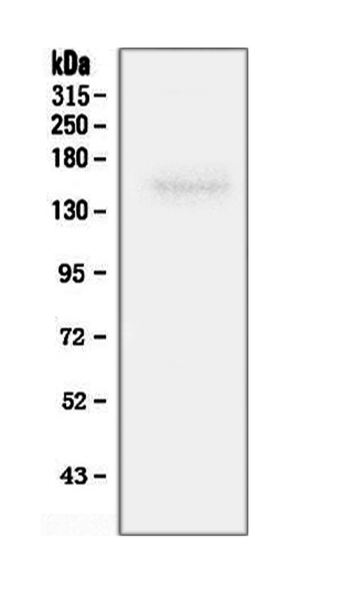 Figure 3. Western blot analysis of ROCK2 using anti-ROCK2 antibody (PA1242). <br> Electrophoresis was performed on a 5-20% SDS-PAGE gel at 70V (Stacking gel) / 90V (Resolving gel) for 2-3 hours. The sample well of each lane was loaded with 50ug of sample under reducing conditions. <br> Lane 1: rat brain tissue lysate. <br> After Electrophoresis, proteins were transferred to a Nitrocellulose membrane at 150mA for 50-90 minutes. Blocked the membrane with 5% Non-fat Milk/ TBS for 1.5 hour at RT. The membrane was incubated with rabbit anti-ROCK2 antigen affinity purified polyclonal antibody (Catalog # PA1242) at 0.5 μg/mL overnight at 4°C, then washed with TBS-0.1%Tween 3 times with 5 minutes each and probed with a goat anti-rabbit IgG-HRP secondary antibody at a dilution of 1:10000 for 1.5 hour at RT. The signal is developed using an Enhanced Chemiluminescent detection (ECL) kit (Catalog # EK1002) with Tanon 5200 system. A specific band was detected for ROCK2 at approximately 161KD. The expected band size for ROCK2 is at 161KD.