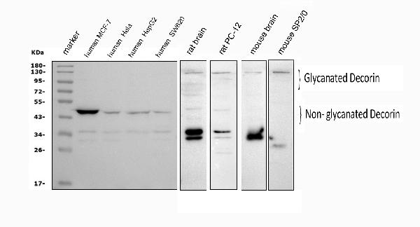 Figure 1. Western blot analysis of Decorin using anti-Decorin antibody (PA1314). <br> Electrophoresis was performed on a 5-20% SDS-PAGE gel at 70V (Stacking gel) / 90V (Resolving gel) for 2-3 hours. The sample well of each lane was loaded with 50ug of sample under reducing conditions. <br> Lane 1: human MCF-7 whole cell lysates, <br> Lane 2: human Hela whole cell lysates, <br> Lane 3: human HepG2 whole cell lysates, <br> Lane 4: human SW620 whole cell lysates, <br> Lane 5: rat brain tissue lysates, <br> Lane 6: rat PC-12 whole cell lysates, <br> Lane 7: mouse brain tissue lysates, <br> Lane 8: mouse SP2/0 whole cell lysates. <br> After Electrophoresis, proteins were transferred to a Nitrocellulose membrane at 150mA for 50-90 minutes. Blocked the membrane with 5% Non-fat Milk/ TBS for 1.5 hour at RT. The membrane was incubated with rabbit anti-Decorin antigen affinity purified polyclonal antibody (Catalog # PA1314) at 0.5 μg/mL overnight at 4°C, then washed with TBS-0.1%Tween 3 times with 5 minutes each and probed with a goat anti-rabbit IgG-HRP secondary antibody at a dilution of 1:5000 for 1.5 hour at RT. The signal is developed using an Enhanced Chemiluminescent detection (ECL) kit (Catalog # EK1002) with Tanon 5200 system. Specific bands were detected for Decorin at approximately 40-50KD and 80-140KD. The expected band sizes for Decorin are at 40-50KD and 80-140KD.