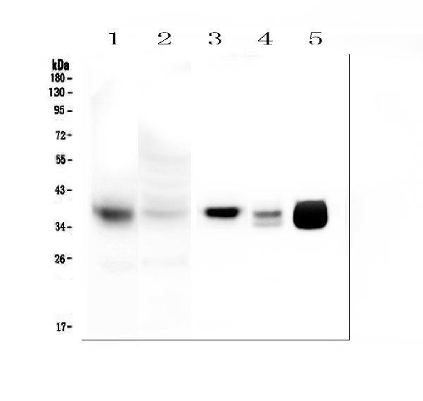 Figure 1. Western blot analysis of MTCO1 using anti- MTCO1 antibody (PA1317-1). <br> Electrophoresis was performed on a 5-20% SDS-PAGE gel at 70V (Stacking gel) / 90V (Resolving gel) for 2-3 hours. The samples were loaded under reducing conditions. <br> Lane 1: human HeLa mitochondria lysates at 20ug, <br> Lane 2: human HeLa whole cell lysates at 20ug, <br> Lane 3: human Caco-2 whole cell lysates at 50ug,<br> Lane 4: rat heart tissue lysates at 50ug. <br> Lane 5: mouse heart tissue lysates at 50ug. <br> After Electrophoresis, proteins were transferred to a Nitrocellulose membrane at 150mA for 60 minutes. Blocked the membrane with 5% Non-fat Milk in TBS for 1.5 hour at RT. The membrane was incubated with rabbit anti- MTCO1 antigen affinity purified polyclonal antibody (Catalog # PA1317-1) at 0.5 μg/mL overnight at 4°C, then washed with TBS-0.1%Tween 3 times with 5 minutes each and probed with a goat anti-rabbit IgG-HRP secondary antibody at a dilution of 1:10000 for 1.5 hour at RT. The signal is developed using an Enhanced Chemiluminescent detection (ECL) kit (Catalog # EK1002) with Tanon 5200 system. A specific band was detected for MTCO1 at approximately 37KD. The expected band size for MTCO1 is at 57KD.