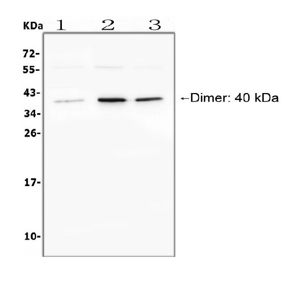 Figure 1. Western blot analysis of BAFFR using anti- BAFFR antibody (PA1391).  Electrophoresis was performed on a 5-20% SDS-PAGE gel at 70V (Stacking gel) / 90V (Resolving gel) for 2-3 hours. The sample well of each lane was loaded with 50ug of sample under reducing conditions.  Lane 1: human Raji whole cell lysates,  Lane 2: human HEK293 whole cell lysates,  Lane 3: human K562 whole cell lysates,  After Electrophoresis, proteins were transferred to a Nitrocellulose membrane at 150mA for 50-90 minutes. Blocked the membrane with 5% Non-fat Milk/ TBS for 1.5 hour at RT. The membrane was incubated with rabbit anti- BAFFR antigen affinity purified polyclonal antibody (Catalog # PA1391) at 0.5 μg/mL overnight at 4°C, then washed with TBS-0.1%Tween 3 times with 5 minutes each and probed with a goat anti-rabbit IgG-HRP secondary antibody at a dilution of 1:10000 for 1.5 hour at RT. The signal is developed using an Enhanced Chemiluminescent detection (ECL) kit (Catalog # EK1002) with Tanon 5200 system. A specific band was detected for BAFFR at approximately 40KD. The expected band size for BAFFR is at 19KD.