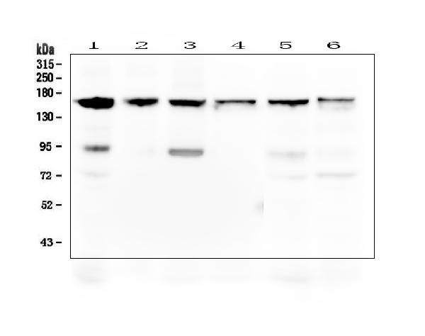 Figure 1. Western blot analysis of Thrombospondin 2/THBS2 using anti-Thrombospondin 2/THBS2 antibody (PA1417). <br> Electrophoresis was performed on a 5-20% SDS-PAGE gel at 70V (Stacking gel) / 90V (Resolving gel) for 2-3 hours. The sample well of each lane was loaded with 50ug of sample under reducing conditions. <br> Lane 1: human Hela whole cell lysates,<br> Lane 2: human 22RV1 whole cell lysates,<br> Lane 3: human U-87MG whole cell lysates, <br> Lane 4: human THP-1 whole cell lysates,<br> Lane 5: human PC-3 whole cell lysates,<br> Lane 6: human Caco-2 whole cell lysates.<br> After Electrophoresis, proteins were transferred to a Nitrocellulose membrane at 150mA for 50-90 minutes. Blocked the membrane with 5% Non-fat Milk/ TBS for 1.5 hour at RT. The membrane was incubated with rabbit anti-Thrombospondin 2/THBS2 antigen affinity purified polyclonal antibody (Catalog # PA1417) at 0.5 μg/mL overnight at 4°C, then washed with TBS-0.1%Tween 3 times with 5 minutes each and probed with a goat anti-rabbit IgG-HRP secondary antibody at a dilution of 1:10000 for 1.5 hour at RT. The signal is developed using an Enhanced Chemiluminescent detection (ECL) kit (Catalog # EK1002) with Tanon 5200 system. A specific band was detected for Thrombospondin 2/THBS2 at approximately 160-190KD. The expected band size for Thrombospondin 2/THBS2 is at 130KD.
