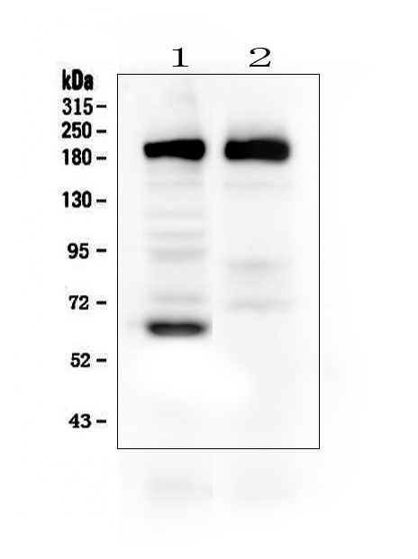 Figure 2. Western blot analysis of Thrombospondin 2/THBS2 using anti-Thrombospondin 2/THBS2 antibody (PA1417). <br> Electrophoresis was performed on a 5-20% SDS-PAGE gel at 70V (Stacking gel) / 90V (Resolving gel) for 2-3 hours. The sample well of each lane was loaded with 50ug of sample under reducing conditions. <br> Lane 1: rat brain tissue lysates,<br> Lane 2: mouse brain tissue lysates.<br> After Electrophoresis, proteins were transferred to a Nitrocellulose membrane at 150mA for 50-90 minutes. Blocked the membrane with 5% Non-fat Milk/ TBS for 1.5 hour at RT. The membrane was incubated with rabbit anti-Thrombospondin 2/THBS2 antigen affinity purified polyclonal antibody (Catalog # PA1417) at 0.5 μg/mL overnight at 4°C, then washed with TBS-0.1%Tween 3 times with 5 minutes each and probed with a goat anti-rabbit IgG-HRP secondary antibody at a dilution of 1:10000 for 1.5 hour at RT. The signal is developed using an Enhanced Chemiluminescent detection (ECL) kit (Catalog # EK1002) with Tanon 5200 system. A specific band was detected for Thrombospondin 2/THBS2 at approximately 160-190KD. The expected band size for Thrombospondin 2/THBS2 is at 130KD.