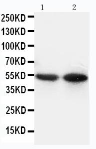 Anti-CD14 Antibody