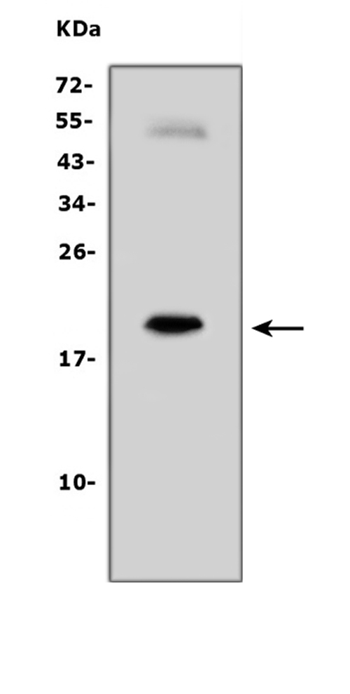 Figure 1. Western blot analysis of IL7 using anti- IL7 antibody (PA1467). <br> Electrophoresis was performed on a 5-20% SDS-PAGE gel at 70V (Stacking gel) / 90V (Resolving gel) for 2-3 hours. The sample well of each lane was loaded with 50ug of sample under reducing conditions. <br> Lane 1: human PC-3 whole cell lysates. <br> After Electrophoresis, proteins were transferred to a Nitrocellulose membrane at 150mA for 50-90 minutes. Blocked the membrane with 5% Non-fat Milk/ TBS for 1.5 hour at RT. The membrane was incubated with rabbit anti- IL7 antigen affinity purified polyclonal antibody (Catalog # PA1467) at 0.5 μg/mL overnight at 4°C, then washed with TBS-0.1%Tween 3 times with 5 minutes each and probed with a goat anti-rabbit IgG-HRP secondary antibody at a dilution of 1:10000 for 1.5 hour at RT. The signal is developed using an Enhanced Chemiluminescent detection (ECL) kit (Catalog # EK1002) with Tanon 5200 system. A specific band was detected for IL7 at approximately 20KD. The expected band size for IL7 is at 20KD.