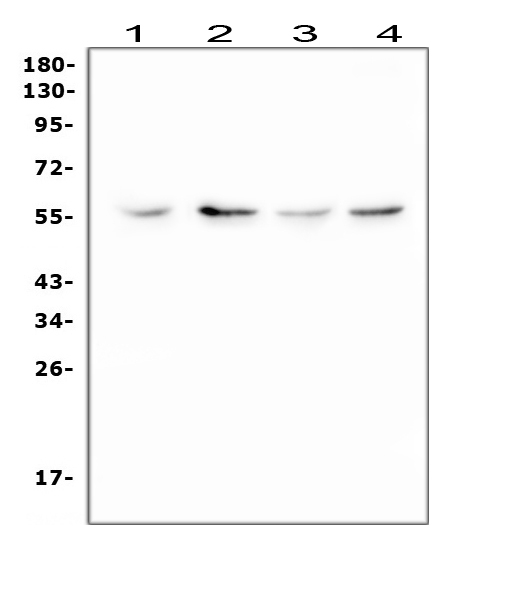 Figure 1. Western blot analysis of XIAP using anti-XIAP antibody (PA1512). <br> Electrophoresis was performed on a 5-20% SDS-PAGE gel at 70V (Stacking gel) / 90V (Resolving gel) for 2-3 hours. The sample well of each lane was loaded with 50ug of sample under reducing conditions. <br> Lane 1: human HepG2 whole cell lysate, <br> Lane 2: human Raji whole cell lysate, <br> Lane 3: rat C6 whole cell lysate, <br> Lane 4: mouse Neuro-2a whole cell lysate. <br> After Electrophoresis, proteins were transferred to a Nitrocellulose membrane at 150mA for 50-90 minutes. Blocked the membrane with 5% Non-fat Milk/ TBS for 1.5 hour at RT. The membrane was incubated with rabbit anti-XIAP antigen affinity purified polyclonal antibody (Catalog # PA1512) at 0.5 μg/mL overnight at 4°C, then washed with TBS-0.1%Tween 3 times with 5 minutes each and probed with a goat anti-rabbit IgG-HRP secondary antibody at a dilution of 1:10000 for 1.5 hour at RT. The signal is developed using an Enhanced Chemiluminescent detection (ECL) kit (Catalog # EK1002) with Tanon 5200 system. A specific band was detected for XIAP at approximately 57KD. The expected band size for XIAP is at 57KD.