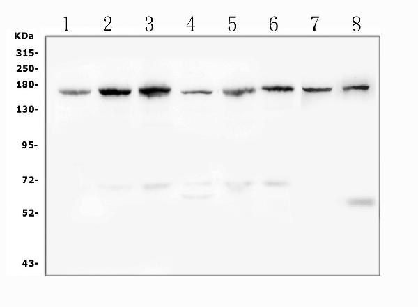 Figure 1. Western blot analysis of Desmoglein 2 using anti- Desmoglein 2 antibody (PA1559). <br> Electrophoresis was performed on a 5-20% SDS-PAGE gel at 70V (Stacking gel) / 90V (Resolving gel) for 2-3 hours. The sample well of each lane was loaded with 50ug of sample under reducing conditions. <br> Lane 1: human K562 whole cell lysates, <br> Lane 2: human Hela whole cell lysates, <br> Lane 3: human HepG2 whole cell lysates, <br> Lane 4: human A549 whole cell lysates, <br> Lane 5: human Caco-2 whole cell lysates, <br> Lane 6: human SW620 whole cell lysates, <br> Lane 7: rat liver tissue lysates, <br> Lane 8: mouse liver tissue lysates, <br> After Electrophoresis, proteins were transferred to a Nitrocellulose membrane at 150mA for 50-90 minutes. Blocked the membrane with 5% Non-fat Milk/ TBS for 1.5 hour at RT. The membrane was incubated with rabbit anti- Desmoglein 2 antigen affinity purified polyclonal antibody (Catalog # PA1559) at 0.5 μg/mL overnight at 4°C, then washed with TBS-0.1%Tween 3 times with 5 minutes each and probed with a goat anti-rabbit IgG-HRP secondary antibody at a dilution of 1:10000 for 1.5 hour at RT. The signal is developed using an Enhanced Chemiluminescent detection (ECL) kit (Catalog # EK1002) with Tanon 5200 system. A specific band was detected for Desmoglein 2 at approximately 160KD. The expected band size for Desmoglein 2 is at 122KD.
