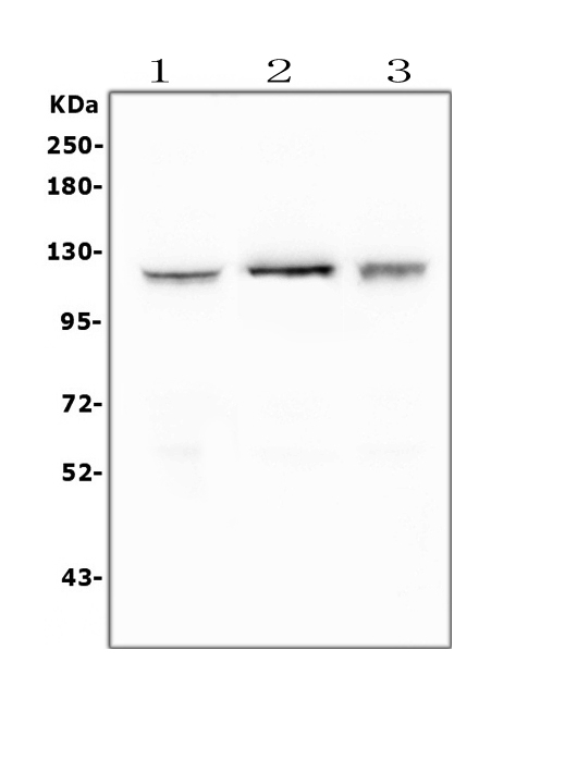 Figure 1. Western blot analysis of FAK using anti-FAK antibody (PA1574).  <br> Electrophoresis was performed on a 5-20% SDS-PAGE gel at 70V (Stacking gel) / 90V (Resolving gel) for 2-3 hours. The sample well of each lane was loaded with 50ug of sample under reducing conditions.  <br> Lane 1: human HEK293 whole cell lysates<br> Lane 2: human PC-3 whole cell lysates<br> Lane 3: human K562 whole cell lysates  <br> After Electrophoresis, proteins were transferred to a Nitrocellulose membrane at 150mA for 50-90 minutes. Blocked the membrane with 5% Non-fat Milk/ TBS for 1.5 hour at RT. The membrane was incubated with rabbit anti-FAK antigen affinity purified polyclonal antibody (Catalog # PA1574) at 0.5 μg/mL overnight at 4°C, then washed with TBS-0.1%Tween 3 times with 5 minutes each and probed with a goat anti-rabbit IgG-HRP secondary antibody at a dilution of 1:10000 for 1.5 hour at RT. The signal is developed using an Enhanced Chemiluminescent detection (ECL) kit (Catalog # EK1002) with Tanon 5200 system. A specific band was detected for FAK at approximately 119KD. The expected band size for FAK is at 119KD.