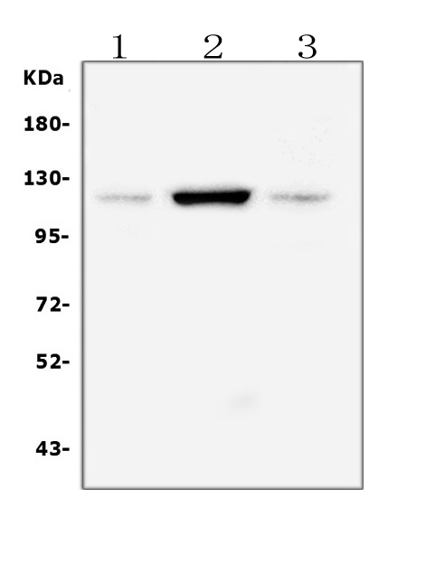 Figure 2. Western blot analysis of FAK using anti-FAK antibody (PA1574).  <br> Electrophoresis was performed on a 5-20% SDS-PAGE gel at 70V (Stacking gel) / 90V (Resolving gel) for 2-3 hours. The sample well of each lane was loaded with 50ug of sample under reducing conditions.  <br> Lane 1: rat heart tissue lysates<br> Lane 2: rat C6 whole cell lysates<br> Lane 3: mouse RAW246.7 whole cell lysates  <br> After Electrophoresis, proteins were transferred to a Nitrocellulose membrane at 150mA for 50-90 minutes. Blocked the membrane with 5% Non-fat Milk/ TBS for 1.5 hour at RT. The membrane was incubated with rabbit anti-FAK antigen affinity purified polyclonal antibody (Catalog # PA1574) at 0.5 μg/mL overnight at 4°C, then washed with TBS-0.1%Tween 3 times with 5 minutes each and probed with a goat anti-rabbit IgG-HRP secondary antibody at a dilution of 1:10000 for 1.5 hour at RT. The signal is developed using an Enhanced Chemiluminescent detection (ECL) kit (Catalog # EK1002) with Tanon 5200 system. A specific band was detected for FAK at approximately 119KD. The expected band size for FAK is at 119KD.