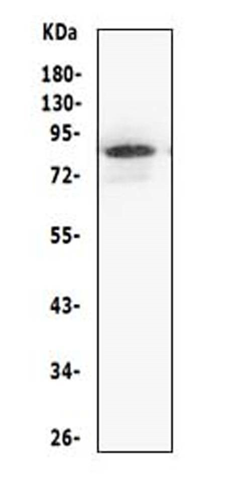 Figure 3. Western blot analysis of MCM5 using anti- MCM5 antibody (PA1653). <br> Electrophoresis was performed on a 5-20% SDS-PAGE gel at 70V (Stacking gel) / 90V (Resolving gel) for 2-3 hours. The sample well of each lane was loaded with 50ug of sample under reducing conditions. <br> Lane 1: human Jurkat whole cell lysates, <br> After Electrophoresis, proteins were transferred to a Nitrocellulose membrane at 150mA for 50-90 minutes. Blocked the membrane with 5% Non-fat Milk/ TBS for 1.5 hour at RT. The membrane was incubated with rabbit anti- MCM5 antigen affinity purified polyclonal antibody (Catalog # PA1653) at 0.5 μg/mL overnight at 4°C, then washed with TBS-0.1%Tween 3 times with 5 minutes each and probed with a goat anti-rabbit IgG-HRP secondary antibody at a dilution of 1:10000 for 1.5 hour at RT. The signal is developed using an Enhanced Chemiluminescent detection (ECL) kit (Catalog # EK1002) with Tanon 5200 system. A specific band was detected for MCM5 at approximately 82KD. The expected band size for MCM5 is at 82KD.