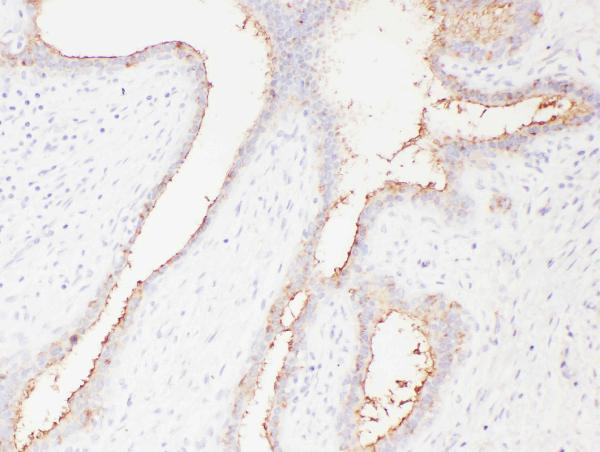 Figure 3. IHC analysis of SLC22A6 using anti- SLC22A6 antibody (PA1683). <br> SLC22A6 was detected in paraffin-embedded section of human mammary cancer tissues. Heat mediated antigen retrieval was performed in citrate buffer (pH6, epitope retrieval solution) for 20 mins. The tissue section was blocked with 10% goat serum. The tissue section was then incubated with 1μg/ml rabbit anti- SLC22A6 Antibody (PA1683) overnight at 4°C. Biotinylated goat anti-rabbit IgG was used as secondary antibody and incubated for 30 minutes at 37°C. The tissue section was developed using Strepavidin-Biotin-Complex (SABC)(Catalog # SA1022) with DAB as the chromogen.