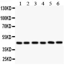 Anti-CD25/IL-2sR alpha Antibody