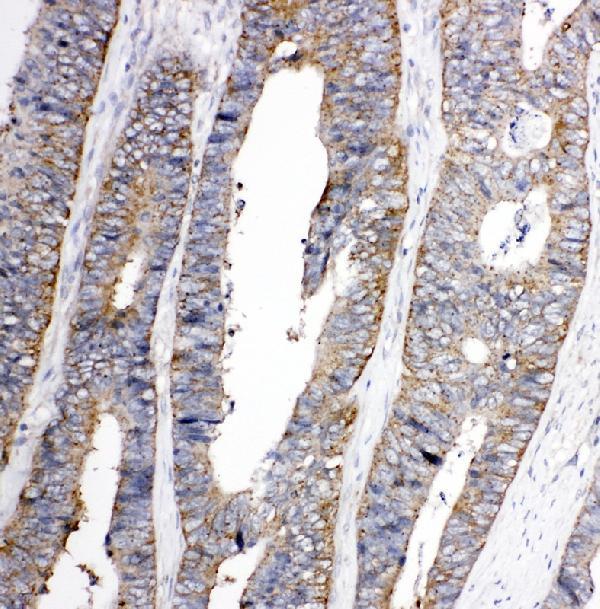 Anti-TRPC3 antibody, PA1753, IHC(P)<br>IHC(P): Human Rectal Cancer Tissue
