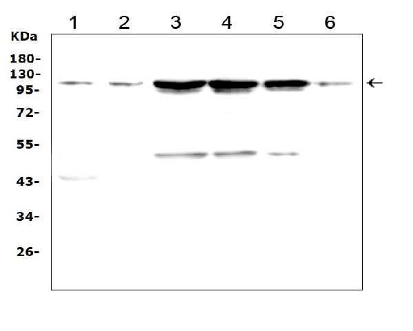 Figure 4. Western blot analysis of TRPC3 using anti- TRPC3 antibody (PA1753). <br> Electrophoresis was performed on a 5-20% SDS-PAGE gel at 70V (Stacking gel) / 90V (Resolving gel) for 2-3 hours. The sample well of each lane was loaded with 50ug of sample under reducing conditions. <br> Lane 1: rat brain tissue lysates, <br> Lane 2: mouse brain tissue lysates, <br> Lane 3: human Hela whole cell lysates, <br> Lane 4: human 22RV1 whole cell lysates, <br> Lane 5: human U-87MG whole cell lysates, <br> Lane 6: mouse Neuro-2a whole cell lysates, <br> After Electrophoresis, proteins were transferred to a Nitrocellulose membrane at 150mA for 50-90 minutes. Blocked the membrane with 5% Non-fat Milk/ TBS for 1.5 hour at RT. The membrane was incubated with rabbit anti- TRPC3 antigen affinity purified polyclonal antibody (Catalog # PA1753) at 0.5 μg/mL overnight at 4°C, then washed with TBS-0.1%Tween 3 times with 5 minutes each and probed with a goat anti-rabbit IgG-HRP secondary antibody at a dilution of 1:10000 for 1.5 hour at RT. The signal is developed using an Enhanced Chemiluminescent detection (ECL) kit (Catalog # EK1002) with Tanon 5200 system. A specific band was detected for TRPC3 at approximately 110KD. The expected band size for TRPC3 is at 93KD.