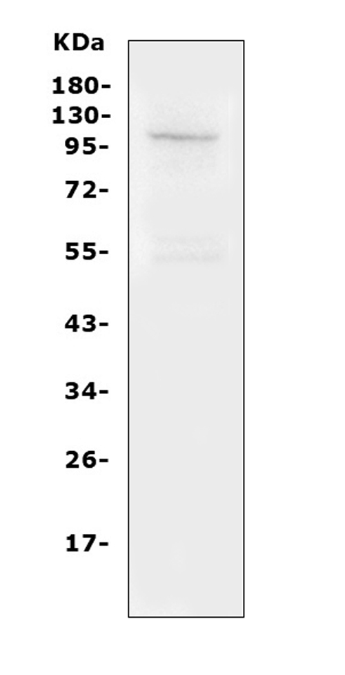 Figure 4. Western blot analysis of TRPC6 using anti- TRPC6 antibody (PA1754). <br> Electrophoresis was performed on a 5-20% SDS-PAGE gel at 70V (Stacking gel) / 90V (Resolving gel) for 2-3 hours. The sample well of each lane was loaded with 50ug of sample under reducing conditions. <br> Lane 1: mouse lung Tissue Lysate<br> After Electrophoresis, proteins were transferred to a Nitrocellulose membrane at 150mA for 50-90 minutes. Blocked the membrane with 5% Non-fat Milk/ TBS for 1.5 hour at RT. The membrane was incubated with rabbit anti- TRPC6 antigen affinity purified polyclonal antibody (Catalog # PA1754) at 0.5 μg/mL overnight at 4°C, then washed with TBS-0.1%Tween 3 times with 5 minutes each and probed with a goat anti-rabbit IgG-HRP secondary antibody at a dilution of 1:10000 for 1.5 hour at RT. The signal is developed using an Enhanced Chemiluminescent detection (ECL) kit (Catalog # EK1002) with Tanon 5200 system. A specific band was detected for TRPC6 at approximately 106KD. The expected band size for TRPC6 is at 106KD.