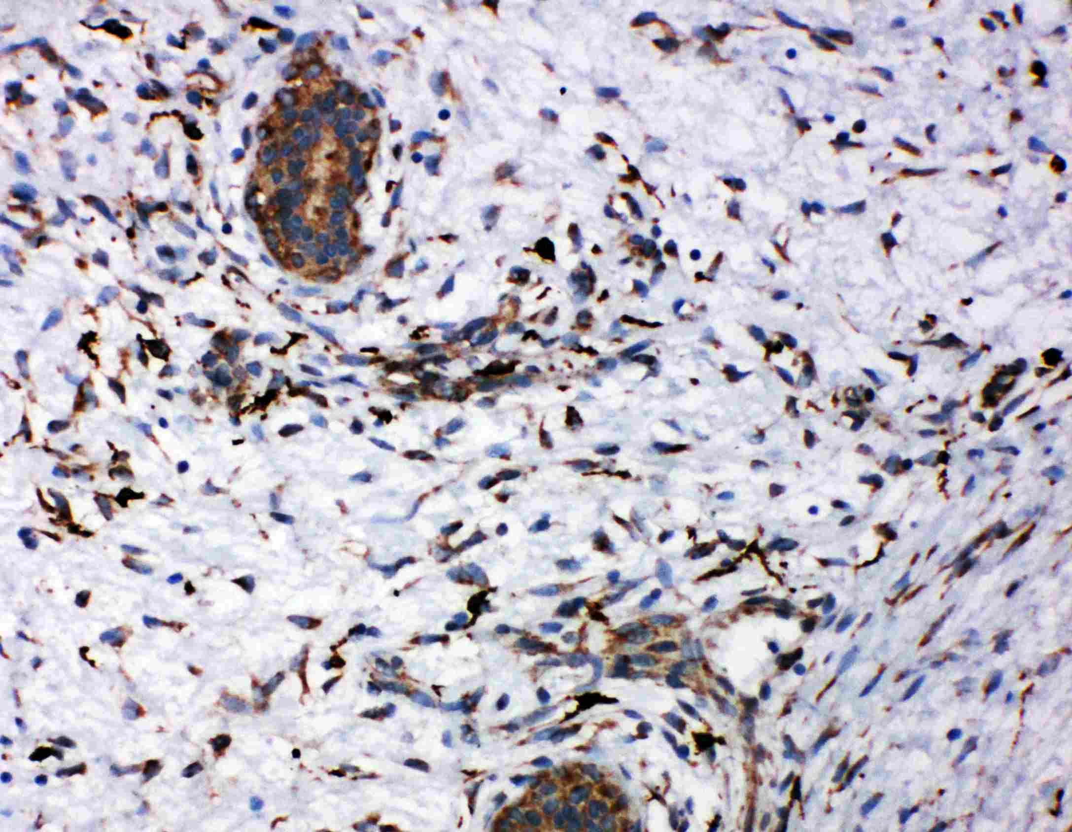 Anti-CD163 Antibody