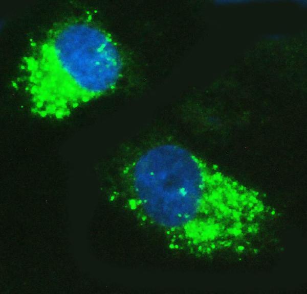 Figure 12. IF analysis of SQSTM1 using anti-SQSTM1 antibody (PA1955).