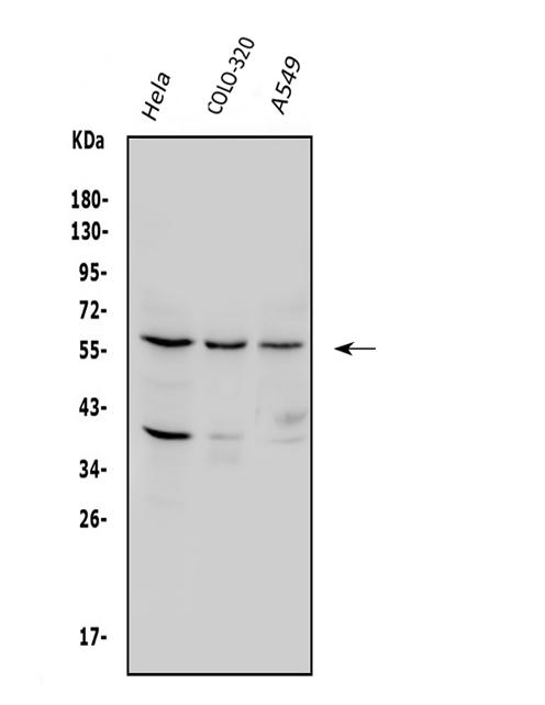 Figure 1. Western blot analysis of SQSTM1 using anti-SQSTM1 antibody (PA1955).