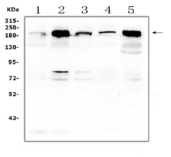 Figure 6. Western blot analysis of ITGB4 using anti-ITGB4 antibody (PB9007). <br> Electrophoresis was performed on a 5-20% SDS-PAGE gel at 70V (Stacking gel) / 90V (Resolving gel) for 2-3 hours. The sample well of each lane was loaded with 50ug of sample under reducing conditions. <br> Lane 1: human A549 whole cell lysates, <br> Lane 2: human PC-3 whole cell lysates, <br> Lane 3: human T-47D whole cell lysates, <br> Lane 4: human Hela whole cell lysates. <br> Lane 5: human Caco-2 whole cell lysates. <br> After Electrophoresis, proteins were transferred to a Nitrocellulose membrane at 150mA for 50-90 minutes. Blocked the membrane with 5% Non-fat Milk/ TBS for 1.5 hour at RT. The membrane was incubated with rabbit anti-ITGB4 antigen affinity purified polyclonal antibody (Catalog # PB9007) at 0.5 μg/mL overnight at 4°C, then washed with TBS-0.1%Tween 3 times with 5 minutes each and probed with a goat anti-rabbit IgG-HRP secondary antibody at a dilution of 1:10000 for 1.5 hour at RT. The signal is developed using an Enhanced Chemiluminescent detection (ECL) kit (Catalog # EK1002) with Tanon 5200 system. A specific band was detected for ITGB4 at approximately 202KD. The expected band size for ITGB4 is at 202KD.