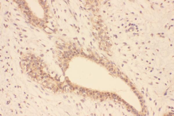 Figure 7. IHC analysis of SOD1 using anti-SOD1 antibody (PB9402). <br> SOD1 was detected in paraffin-embedded section of human mammary cancer tissue. Heat mediated antigen retrieval was performed in EDTA buffer (pH8.0, epitope retrieval solution). The tissue section was blocked with 10% goat serum. The tissue section was then incubated with 1μg/ml rabbit anti-SOD1 Antibody (PB9402) overnight at 4°C. Biotinylated goat anti-rabbit IgG was used as secondary antibody and incubated for 30 minutes at 37°C. The tissue section was developed using Strepavidin-Biotin-Complex (SABC) (Catalog # SA1022) with DAB as the chromogen.