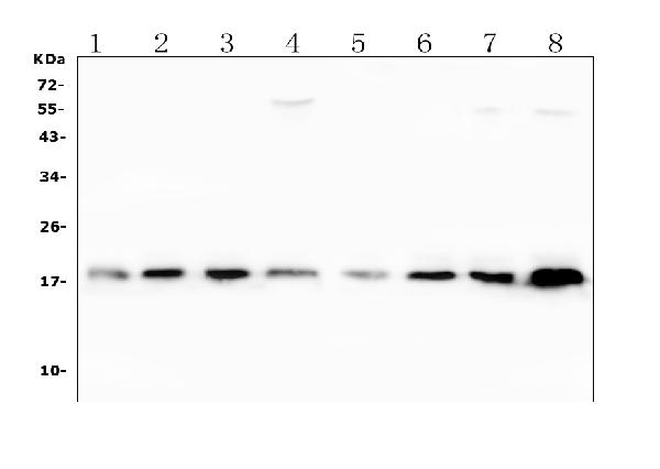 Figure 1. Western blot analysis of SOD1 using anti-SOD1 antibody (PB9402). <br> Electrophoresis was performed on a 5-20% SDS-PAGE gel at 70V (Stacking gel) / 90V (Resolving gel) for 2-3 hours. The sample well of each lane was loaded with 50ug of sample under reducing conditions. <br> Lane 1: human placenta tissue lysates, <br> Lane 2: human Hela whole cell lysates, <br> Lane 3: human MDA-MB-231 whole cell lysates, <br> Lane 4: human SW620 whole cell lysates, <br> Lane 5: human A549 whole cell lysates, <br> Lane 6: human HepG2 whole cell lysates, <br> Lane 7: human Jurkat whole cell lysates, <br> Lane 8: human K562 whole cell lysates. <br> After Electrophoresis, proteins were transferred to a Nitrocellulose membrane at 150mA for 50-90 minutes. Blocked the membrane with 5% Non-fat Milk/ TBS for 1.5 hour at RT. The membrane was incubated with rabbit anti-SOD1 antigen affinity purified polyclonal antibody (Catalog # PB9402) at 0.5 μg/mL overnight at 4°C, then washed with TBS-0.1%Tween 3 times with 5 minutes each and probed with a goat anti-rabbit IgG-HRP secondary antibody at a dilution of 1:10000 for 1.5 hour at RT. The signal is developed using an Enhanced Chemiluminescent detection (ECL) kit (Catalog # EK1002) with Tanon 5200 system. A specific band was detected for SOD1 at approximately 18KD. The expected band size for SOD1 is at 16KD.